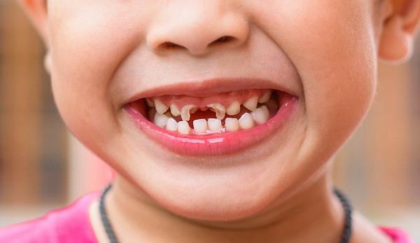 Sâu răng ở trẻ em ngày càng phổ biến